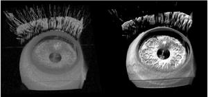 gpu-eye-microsurgery_jp-720x340