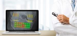 hdr-ai-osteoarthritis