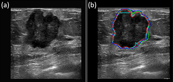 hdr-deep-learning-ultrasound-cancer-diagnosis