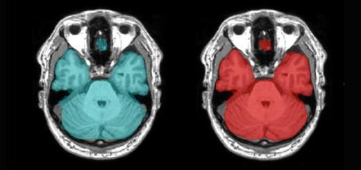 hdr-ai-medical-imaging-gtc-digital