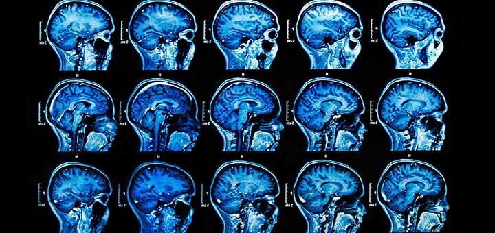 hdr-ai-medical-imaging-gtc